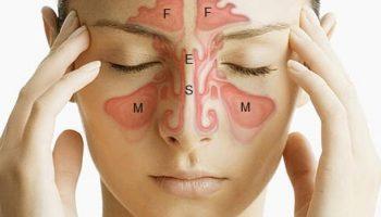 sinusi i alergije