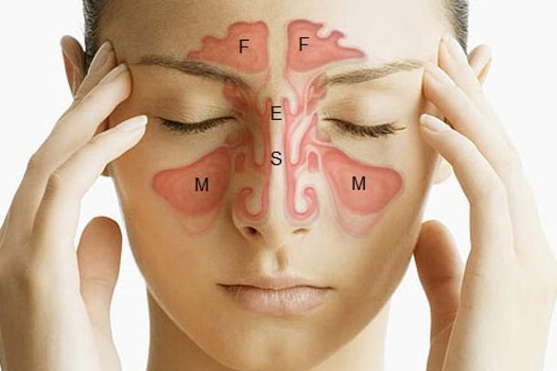 Sinusi i alergije – Dr Gabriel's